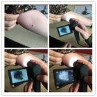 Analizador video electrónico profesional de la piel de Dermatoscope con micro tarjeta SD