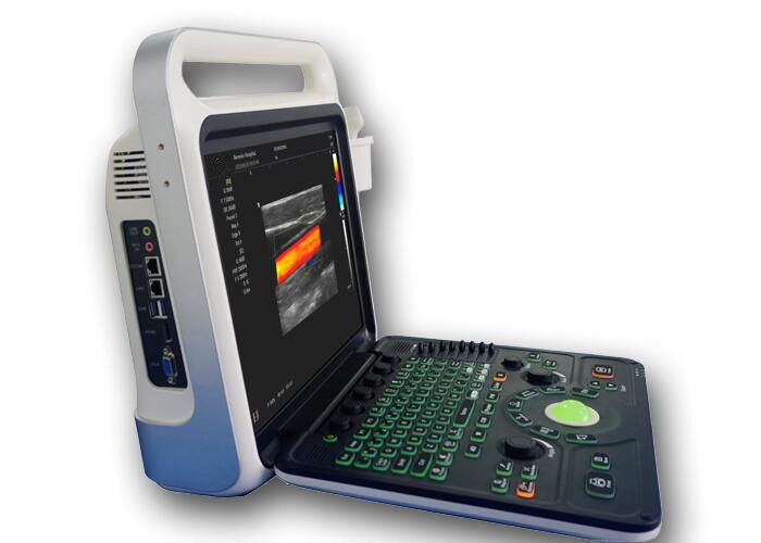 Ultrasound Imaging Machine Portable Ultrasound Scanner with 160G Capacity