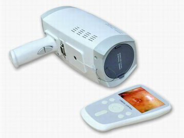 Colposcope electrónico de Digitaces de los pixeles de la resolución 800000 de la lente con el obturador electrónico automático pantalla del PDA de 3,5 pulgadas